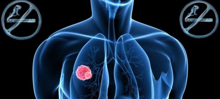 LungsSmoking_web
